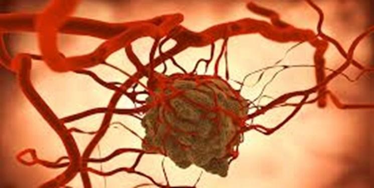 تأخیر در تشخیص سرطان دلیل مرگ زنان///دپوی عید