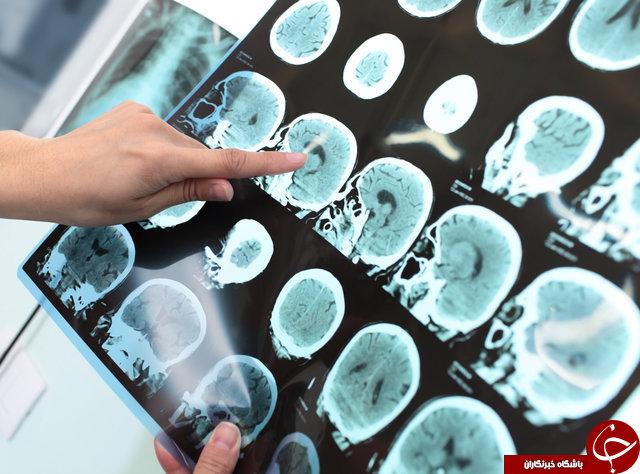 حقایقی که تصور شما را از رفتار بیماران روانی تغییر میدهد! / در مغز یک بیمار روانی چه خبر است؟