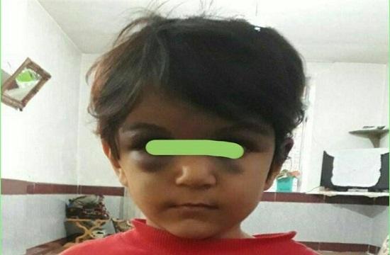 حکم جلب نامادری کودک آزار صادر شد +عکس