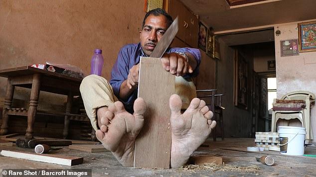 مردی که بیشترین انگشت را در جهان دارد+تصاویر