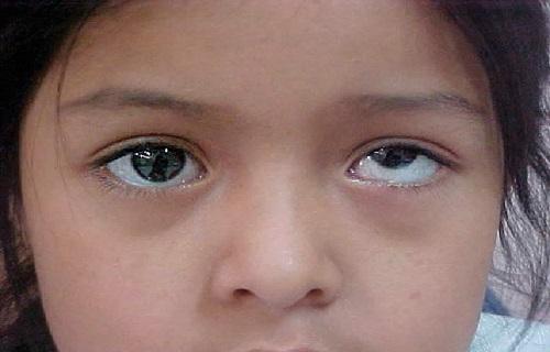 اصلاح نشدن عیوب انکساری چشم عامل انحراف چشم/عیوب انکساری را در کودکی درمان کنید