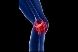 راهکارهای طلایی برای کاهش فشار وارده بر زانوها/ چرا به زانو درد مبتلا میشویم؟