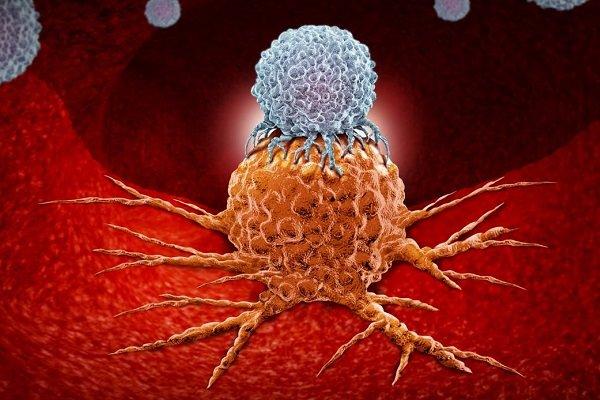 تاثیر آنتی اکسیدانها بر تسریع در پیشرفت سرطان ریه