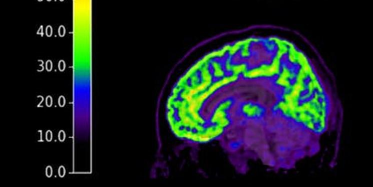 پی بردن به میزان احتمال خودکشی با اسکن مغز انسان