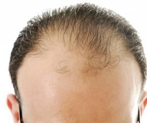 برطرف کردن ریزش مو با نسخه گیاهی
