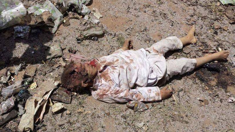 یونیسف: بیش از ۷ هزار کودک از زمان تجاوز عربستان به یمن کشته شدهاند