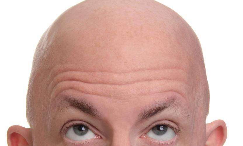 اگر موهایتان کرکی شده است گوش بزنگ باشید؟/ طاسی سراغ چه افرادی میرود؟