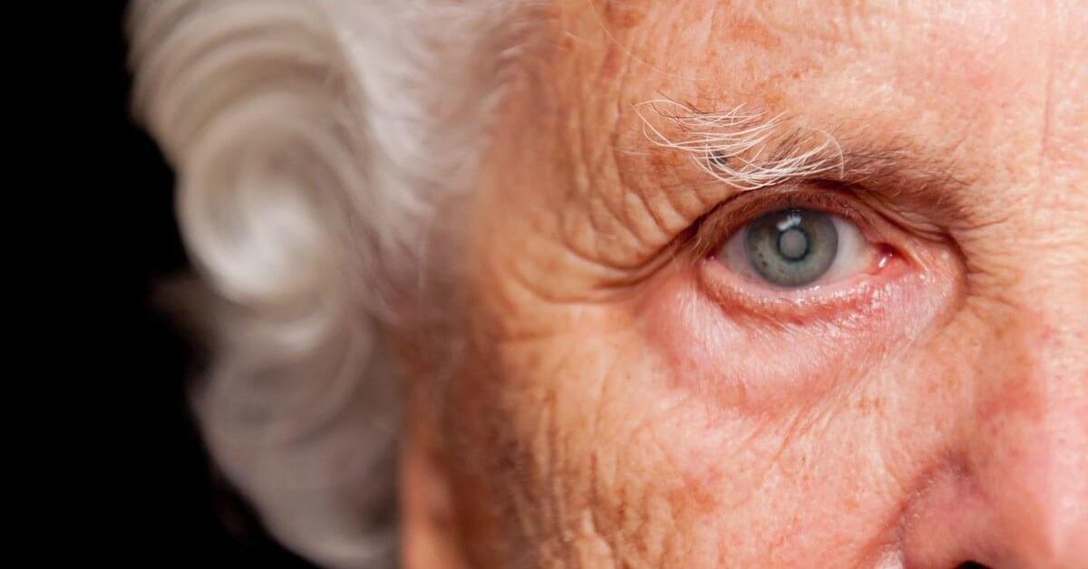 درمان آب سیاه چشم