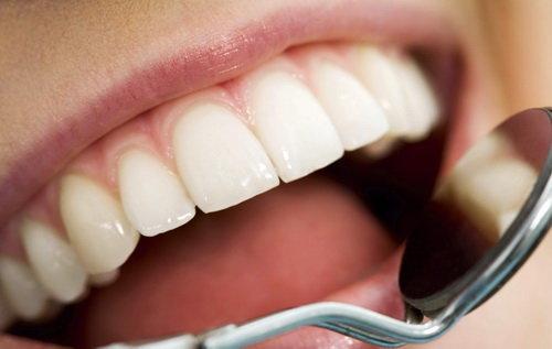 نسخه طبیعی برای مقابله با جرم دندان