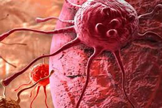 هر آنچه باید درباره سرطان مردانه پروستات بدانید +روشهای درمانی