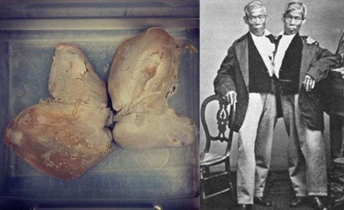 از مغز آلبرت اینشتین تا حنجره آبراهام لینکلن در چندشآورترین موزه جهان/کتابهایی که با پوست انسان جلد شدهاند