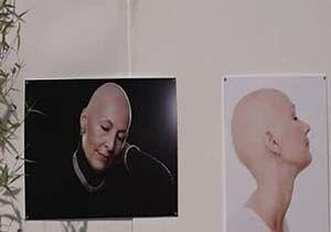 افزایش سرطان در میان زنان ایتالیایی + فیلم