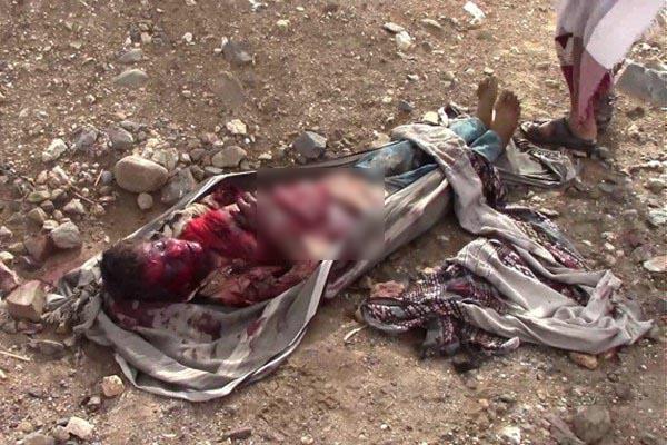تصاویر دلخراش اجساد تکهشده مردم یمن در حمله ائتلاف متجاوز سعودی