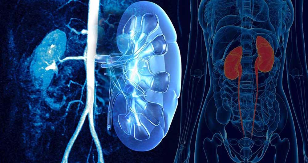 ریفلاکس یا برگشت ادراری؛ از علائم ابتلا تا راهکارهای درمانی