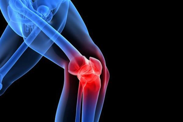 محبی/ راهکارهایی برای کنترل درد زانو/ استفاده از خودسرانه از زانوبندها میتواند باعث تشدید آسیبدیدگی شود