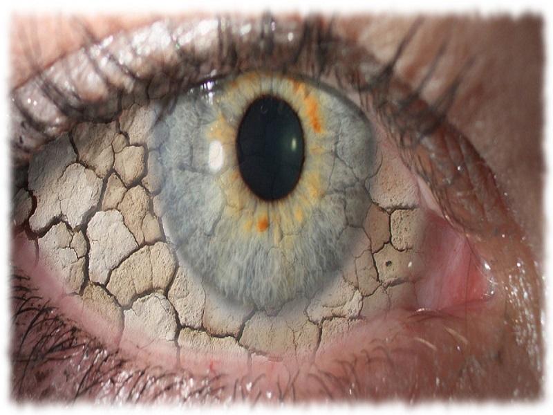 دلایل ایجاد و درمان خشکی چشم را بشناسید/ آیا مشکلات چشمی باعث ایجاد میگرن میشوند؟