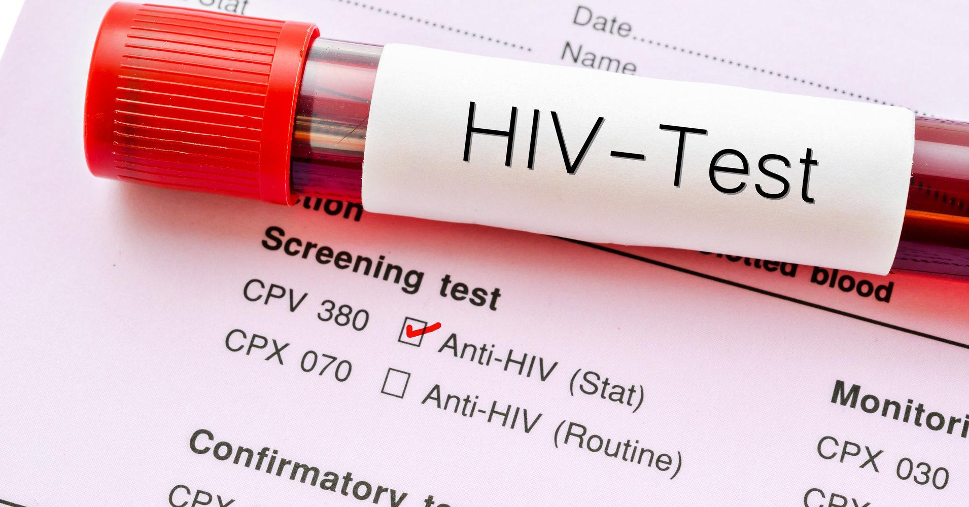چرا آزمایش ایدز قبل از ازدواج اجباری نیست؟