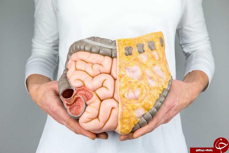 از بیماریهای پوستی تا رفلاکس اسید معده؛ مشکلاتی که رودههای ناسالم برای شما حکایت میکنند!