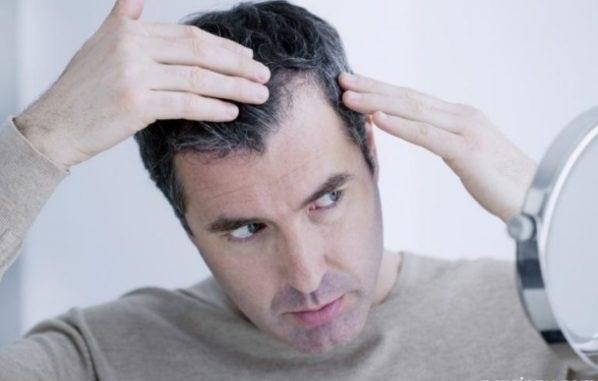 درمانهای خانگی برای رفع سفیدی مو +لیست خورکیهای ضد سفیدی مو