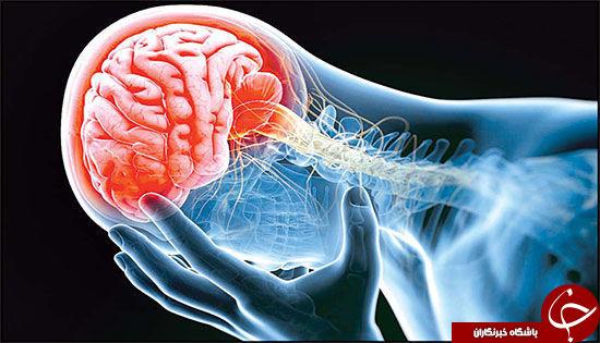ایسکمی مغزی چگونه رخ میدهد؟ + معرفی انواع آن