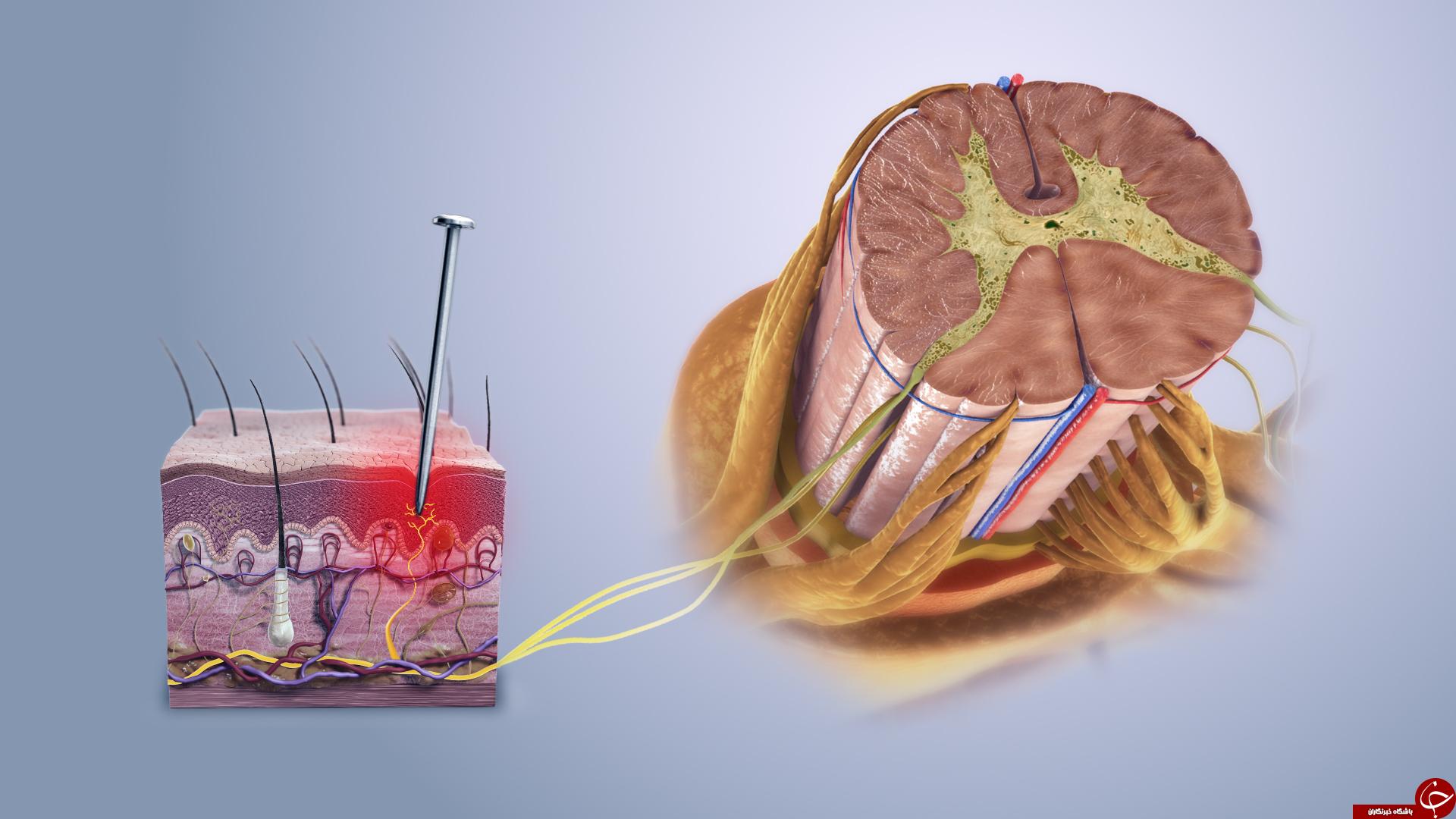 آیا میدانید؛ بدنتان چطور درد را تجزیه و تحلیل میکند؟