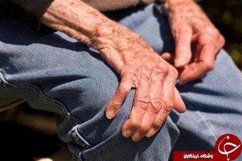 بررسی تغییرات طبیعی در سالمندان