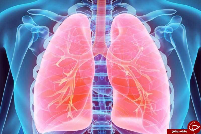 علل نارسایی تنفسی/ چه کسانی در معرض خطر ابتلا به نارسایی تنفسی هستند؟