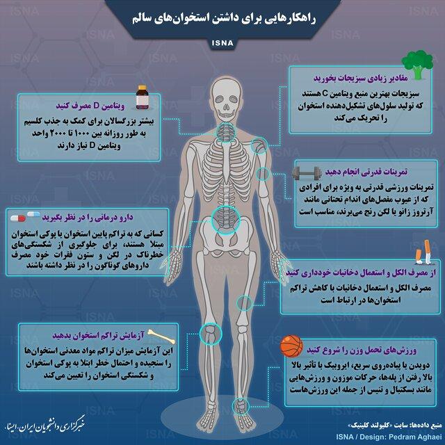راهکارهایی برای داشتن استخوانهای سالم + اینفوگرافی