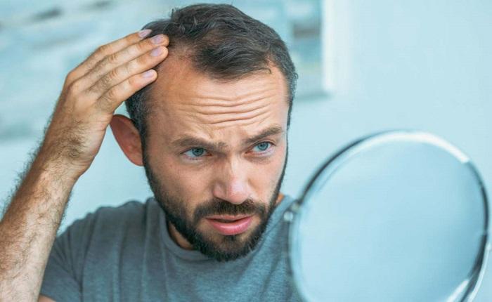 ۸ درمان طبیعی برای مقابله با نازکی مو