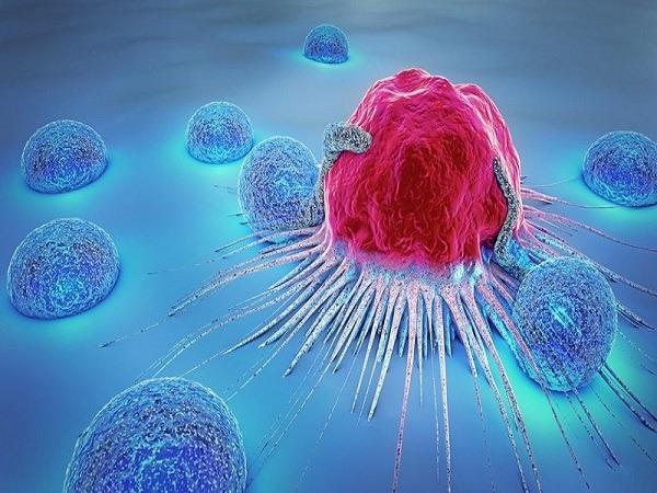 مهمترین شاخصی که سرنوشت بیمار را بعد از تشخیص سرطان تعیین میکند/ عوامل خطر در بروز سرطان