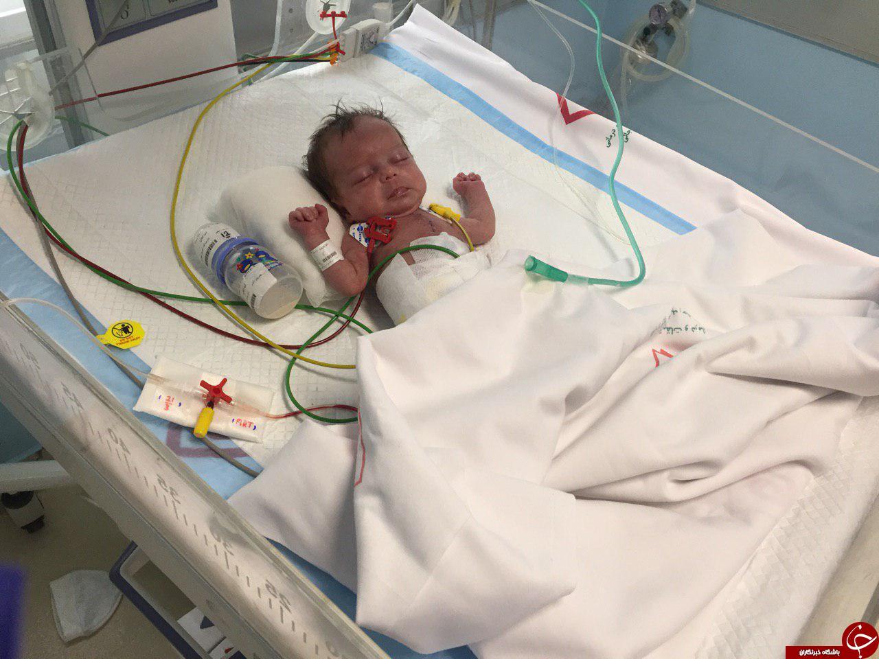 سنگینترین جراحی قلب باز بر روی نوزاد١۴٠٠ گرمی +فیلم و تصاویر