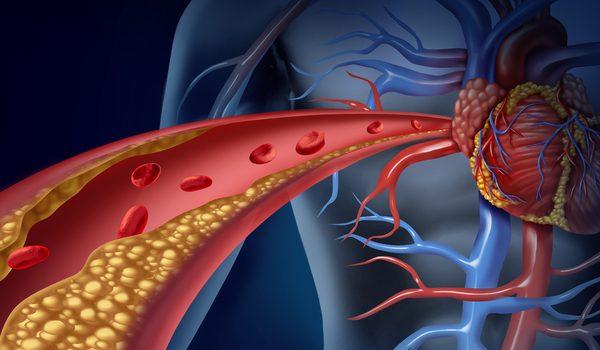 فرمولهای طبیعی برای انکه سکته قلبی سراغتان نیاید + دستورالعمل معجونهای باز کننده عروق قلب