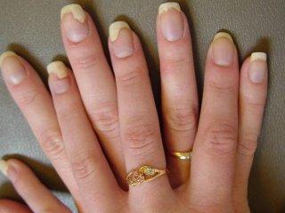 بیماری که به جان ناخنهایتان میافتد +علائم و روشهای درمان قارچ ناخن