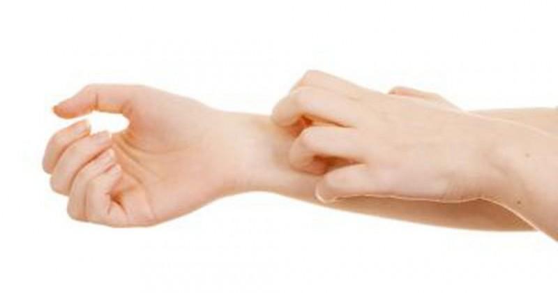علل خطرناکی که سبب خارش پوستی میشوند +راههای درمان