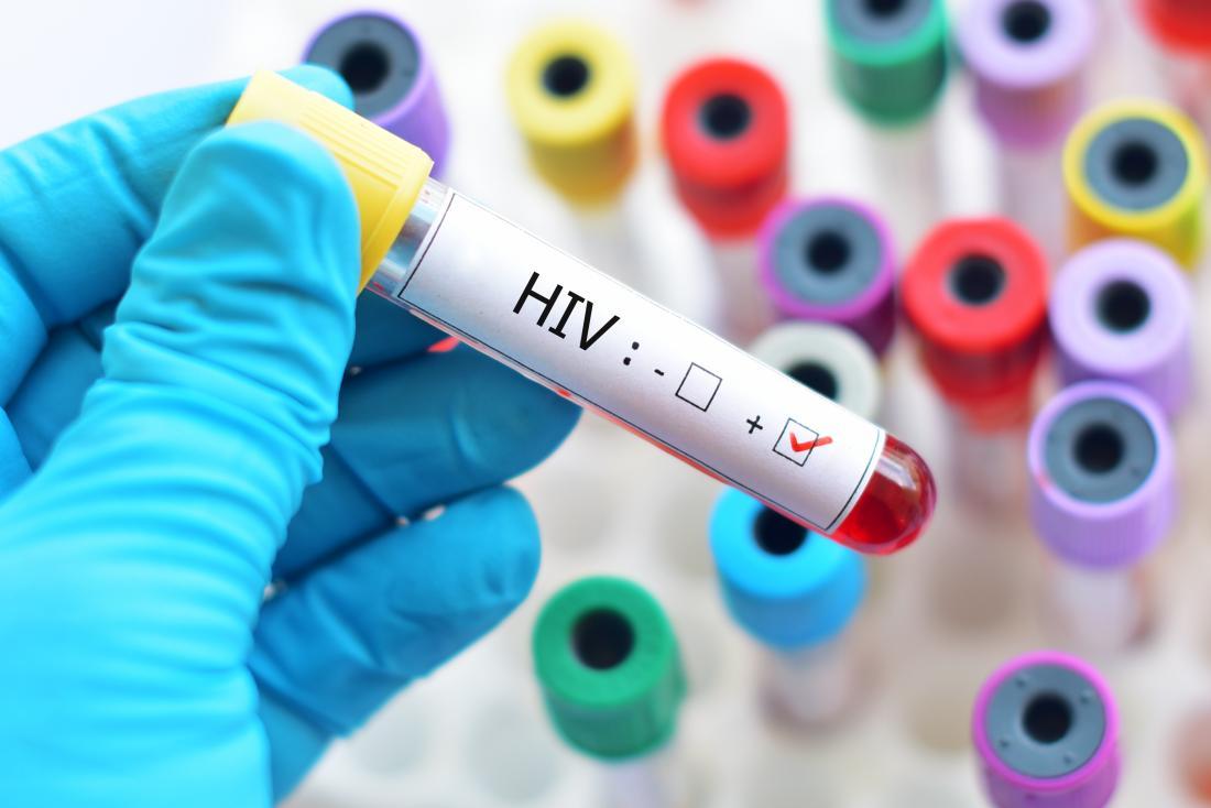 فعالیت ۱۳۰ کلینیک تست سریع تشخیصی HIV در خراسان رضوی
