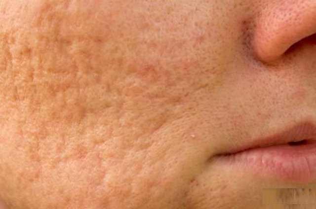 سلولیت خطرناک است؟ علائم و راهکار درمانی