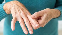 اگر دستهایتان باد میکند گوش بزنگ باشید/ تورمهای صبحگاهی بدن را جدی بگیرید