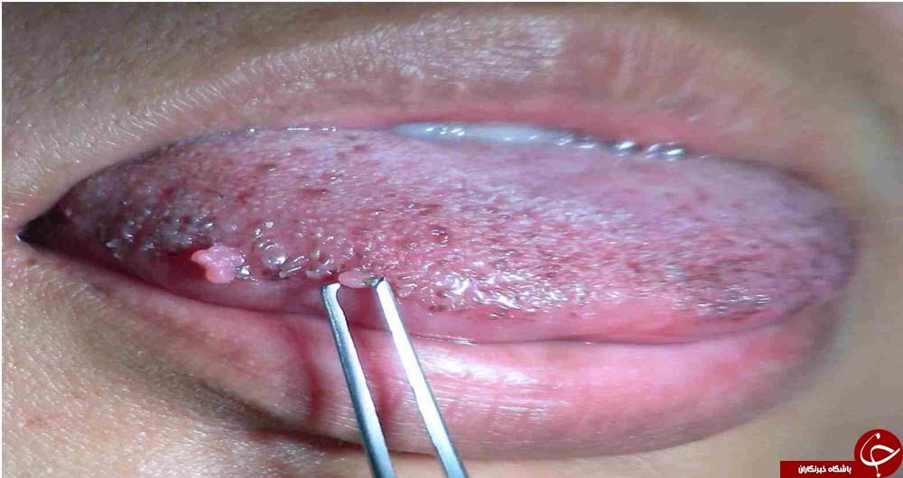 سرطان زبان چه نشانههایی دارد؟! / خالی که از سرطان زبان خبر میدهد!