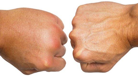 باشگاه خبرنگاران -اگر دستهایتان باد میکند گوش بزنگ باشید/ تورمهای صبحگاهی بدن را جدی بگیرید