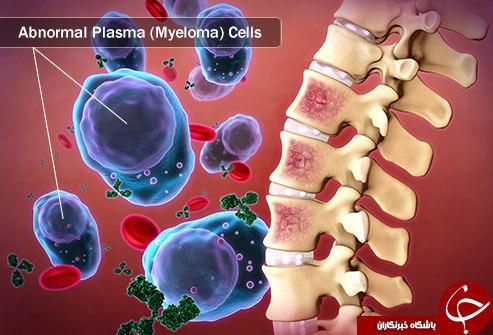 انواع سرطان مغز استخوان را بشناسید + علت و علائم