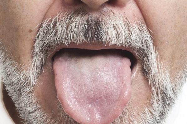اختلالی که دهانتان را برای همیشه بیمزه میکند + علل ابتلا و درمان اختلال چشایی