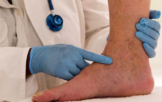 درمان قطعی واریس؛ راحت و سریع و سرپایی
