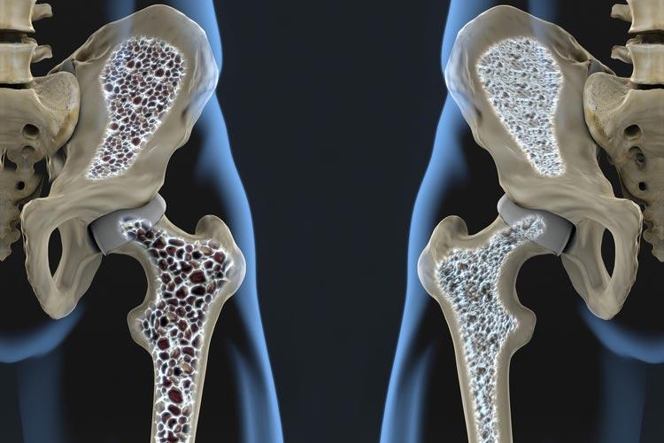 این بیماری خاموش استخوانهایتان را میخورد/ چه کسانی مستعد ابتلا به پوکی استخوان هستند؟