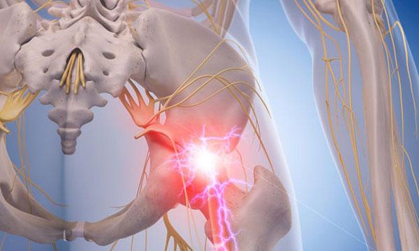 درد سیاتیک چیست؟ + علتها و درمان آن