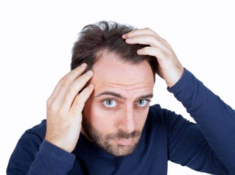 5 راه مراقبت از پوست سر