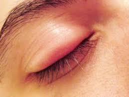 تومورهایی که در کمین چشمانتان نشستهاند  روش درمانی تومورهای چشم و حدقه