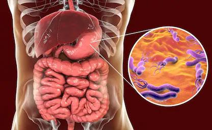 همه چیز درباره میکروبی که سرطان معده میآورد!