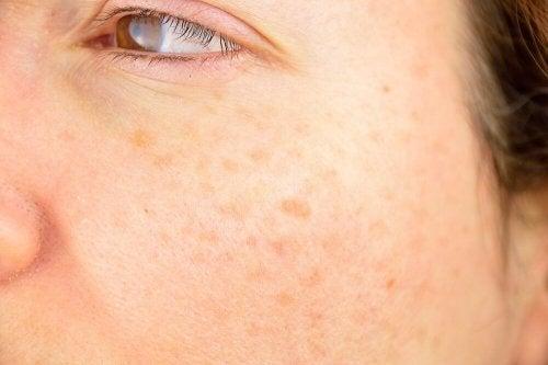 دفع سنگ کلیه با پوست سیب زمینی +فرمول درمان شوره سر و لک پوست