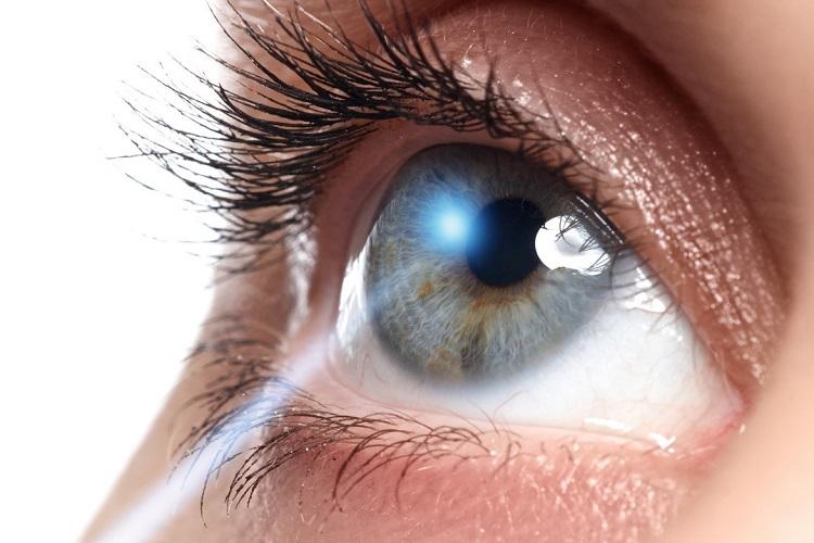 چگونه چشم موجب آستیگماتیسم می شود/کراتوکونوس یا قوز قرینه ⭕️⭕️