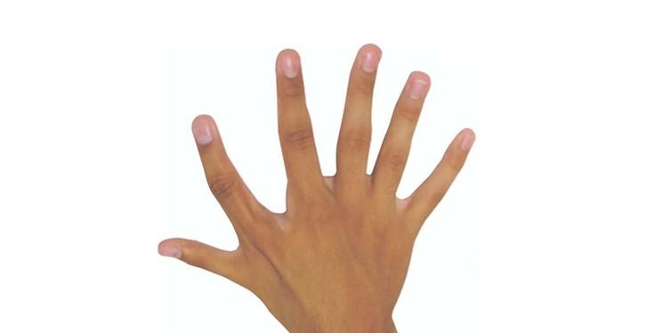 باشگاه خبرنگاران -انگشت ششم مفید است